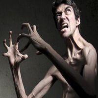 Відомі люди з синдромом Марфана