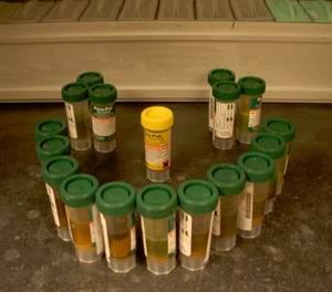 Исследователи образцов стула больных дизентерией